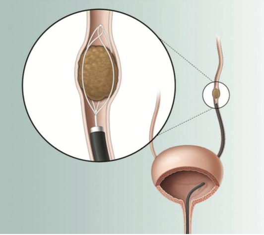 Kidney_ureteral_stones