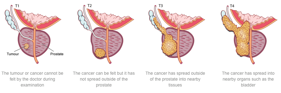 sunshine coast urology what is prostate cancer?prostate_cancer_stages